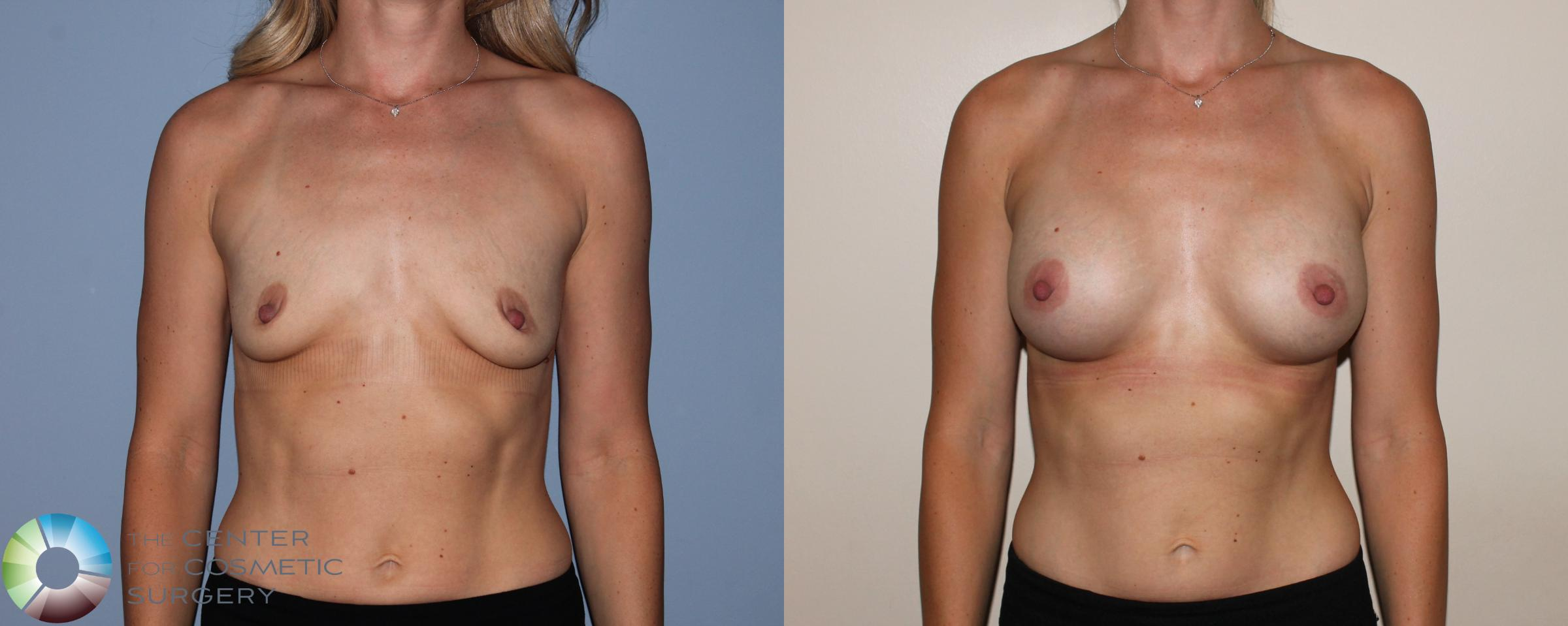 Breast Augmentation Case 742 Before & After View #1 | Golden, CO | The Center for Cosmetic Surgery