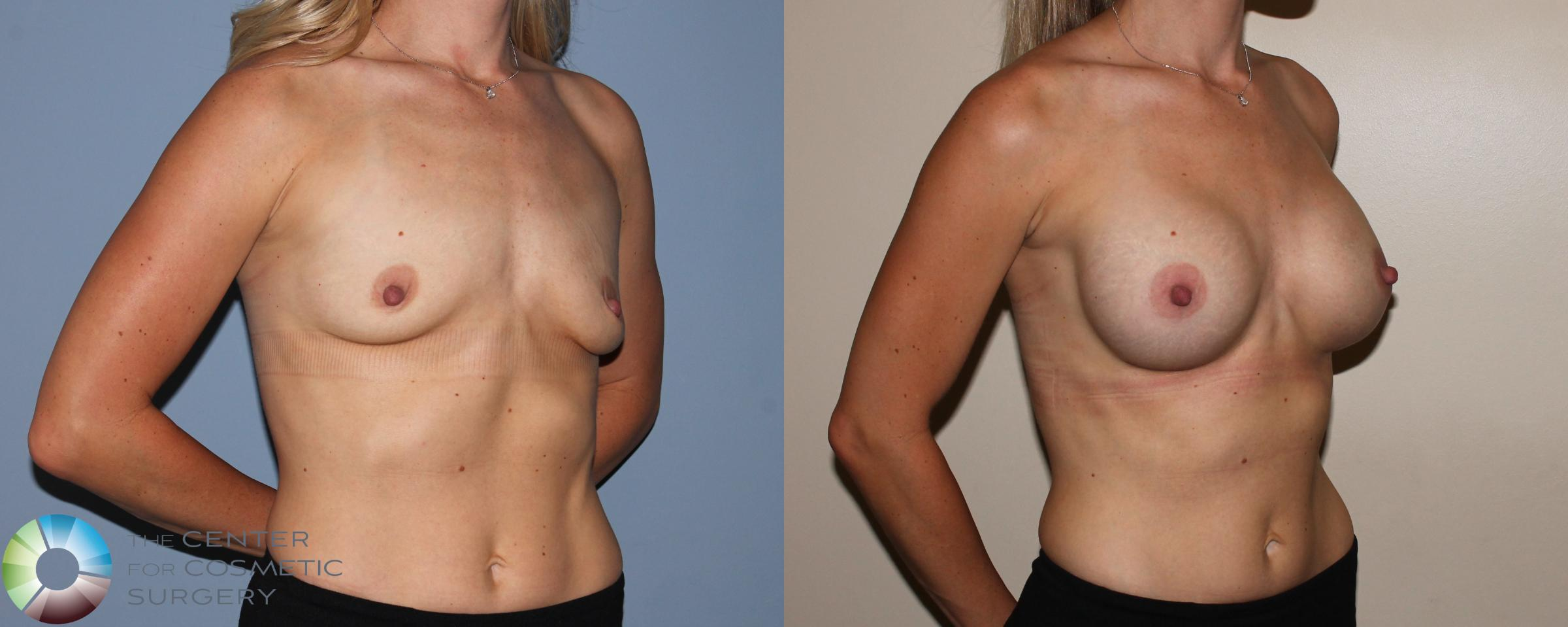 Breast Augmentation Case 742 Before & After View #2 | Golden, CO | The Center for Cosmetic Surgery