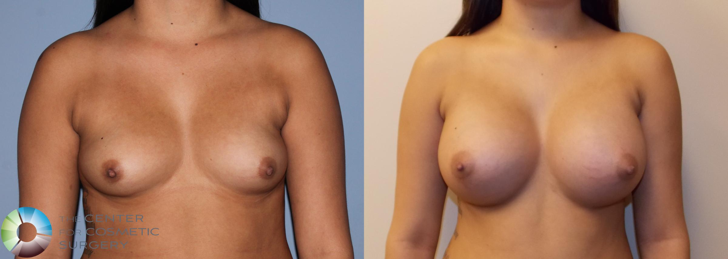 Breast Augmentation Case 754 Before & After View #1 | Golden, CO | The Center for Cosmetic Surgery