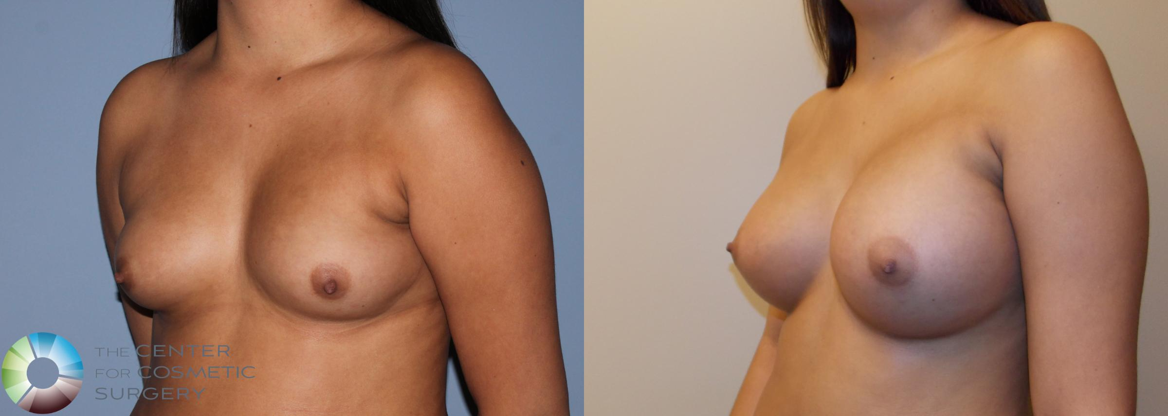 Breast Augmentation Case 754 Before & After View #2 | Golden, CO | The Center for Cosmetic Surgery