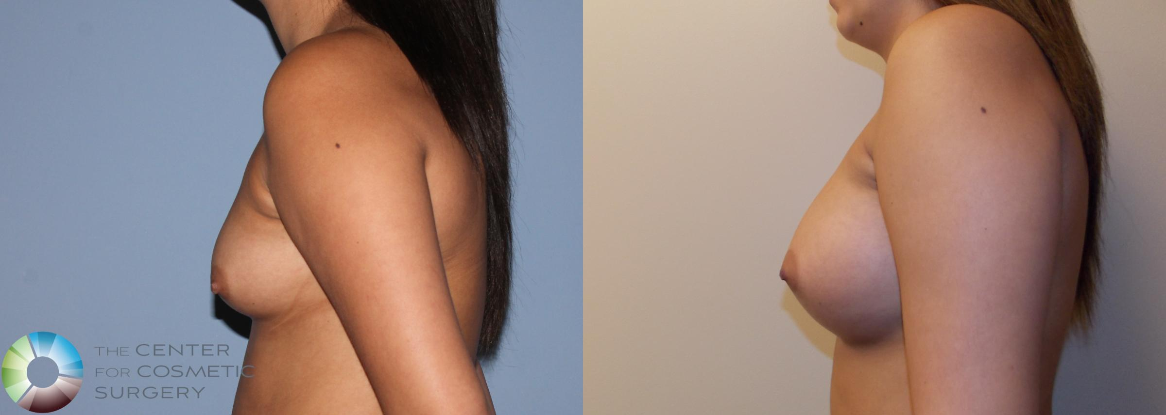 Breast Augmentation Case 754 Before & After View #3 | Golden, CO | The Center for Cosmetic Surgery