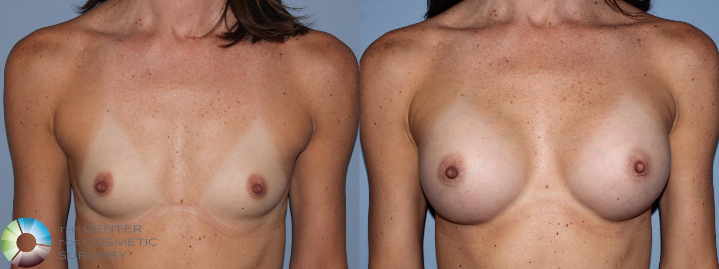 Breast Augmentation Case 756 Before & After View #1 | Golden, CO | The Center for Cosmetic Surgery