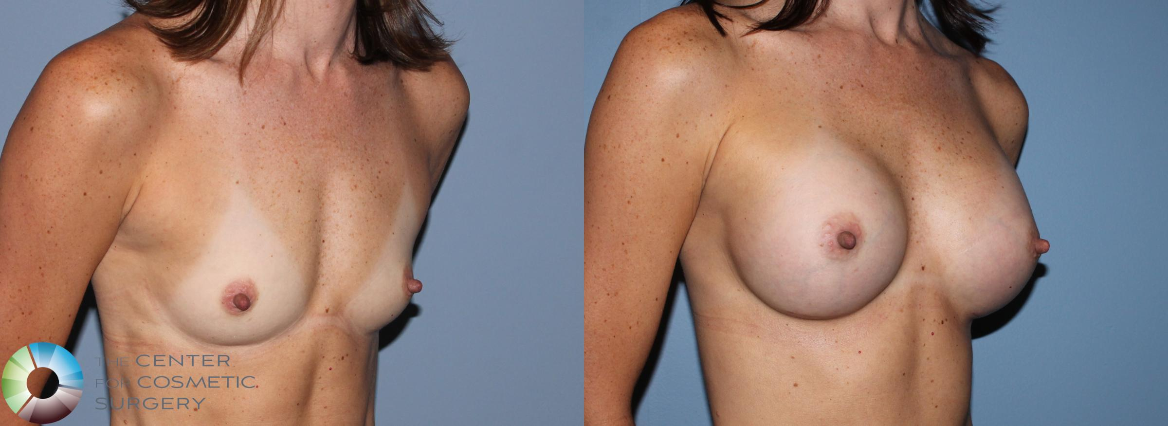 Breast Augmentation Case 756 Before & After View #2 | Golden, CO | The Center for Cosmetic Surgery
