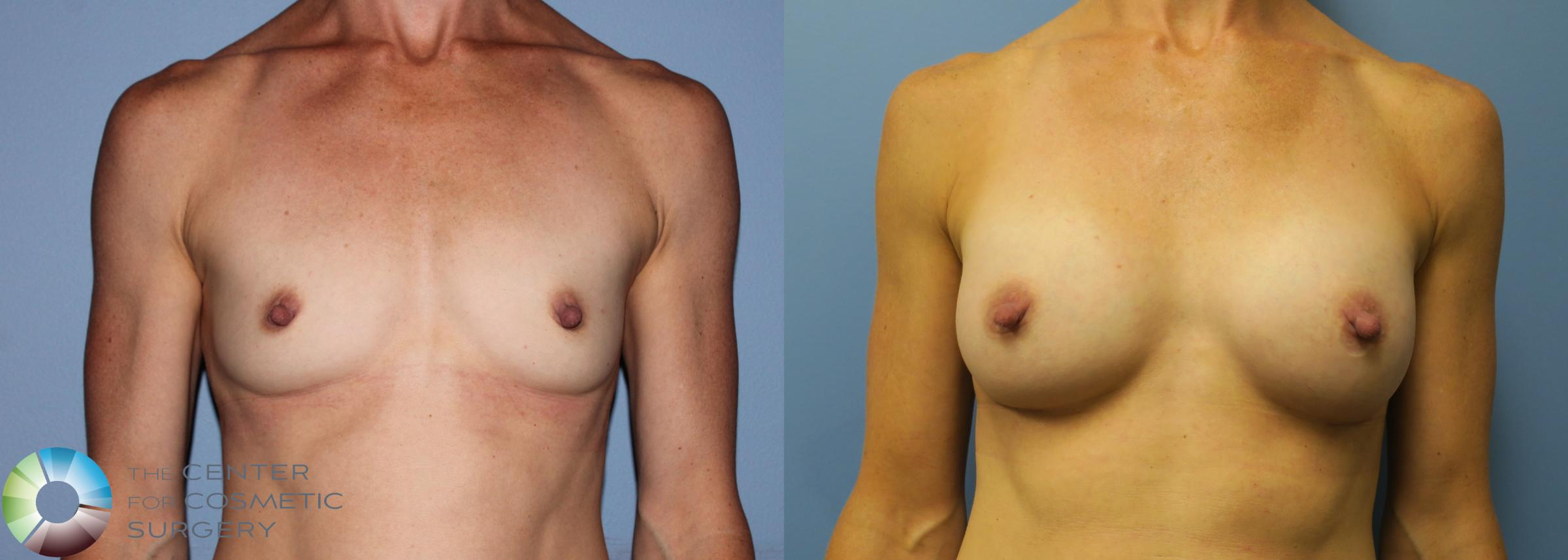 Breast Augmentation Case 759 Before & After View #1 | Golden, CO | The Center for Cosmetic Surgery