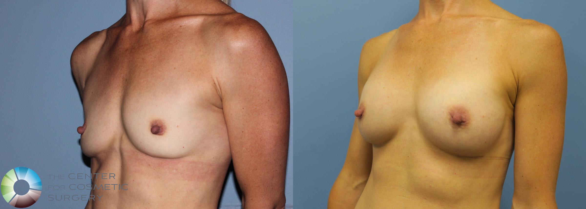 Breast Augmentation Case 759 Before & After View #2 | Golden, CO | The Center for Cosmetic Surgery