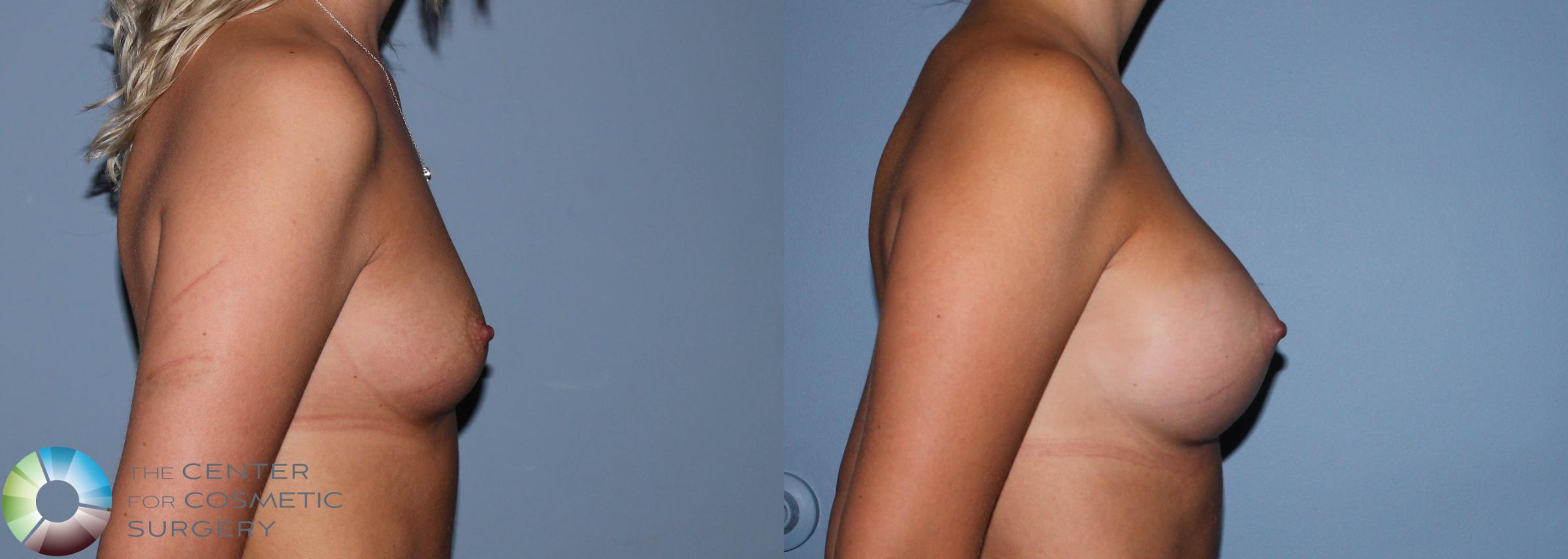Breast Augmentation Case 761 Before & After View #1 | Golden, CO | The Center for Cosmetic Surgery