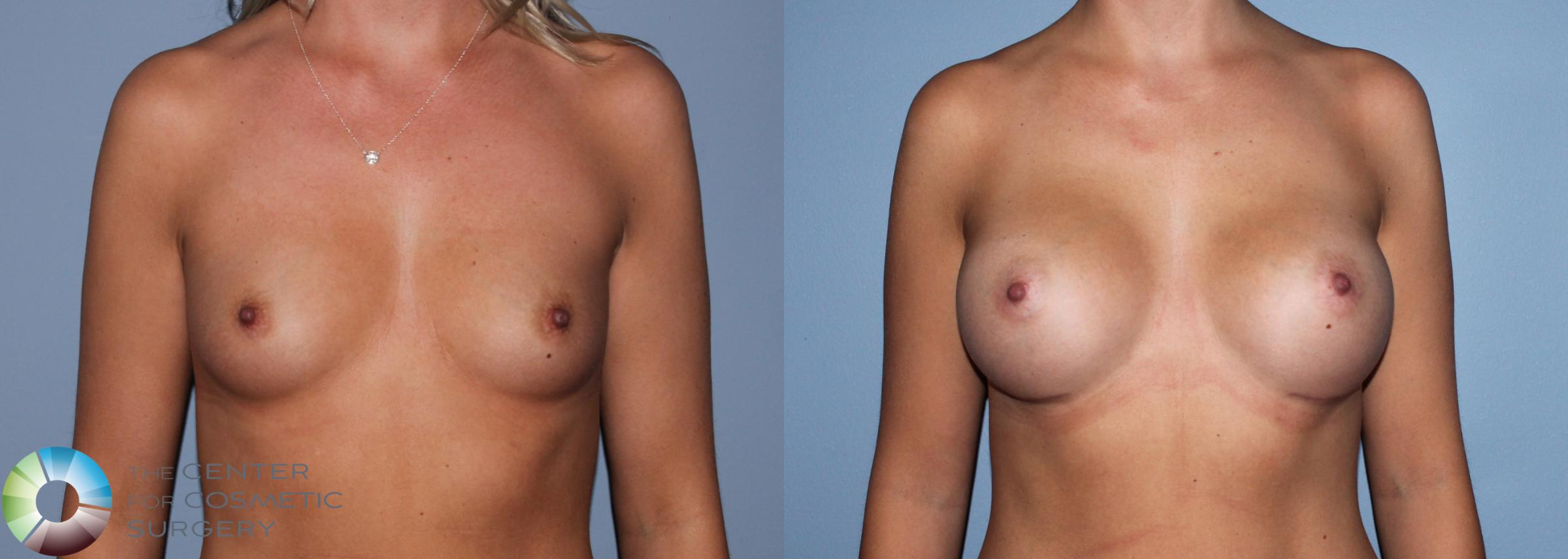 Breast Augmentation Case 761 Before & After View #3 | Golden, CO | The Center for Cosmetic Surgery