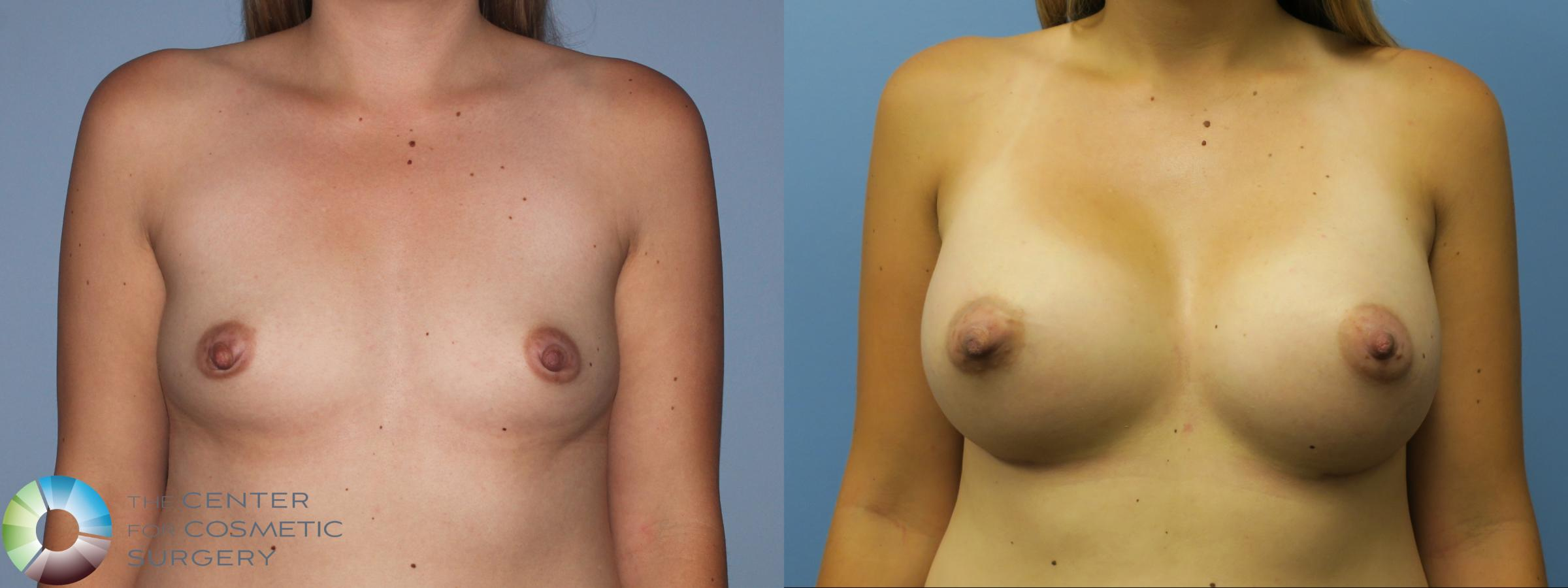 Breast Augmentation Case 762 Before & After View #1 | Golden, CO | The Center for Cosmetic Surgery