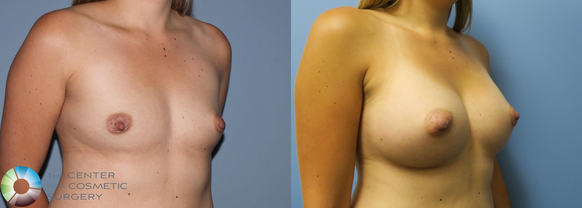 Breast Augmentation Case 762 Before & After View #2 | Golden, CO | The Center for Cosmetic Surgery