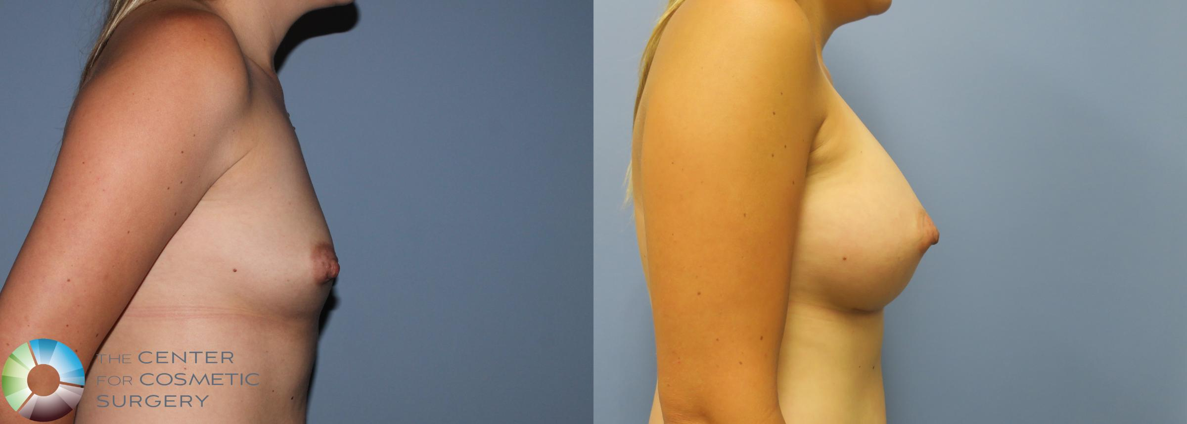 Breast Augmentation Case 762 Before & After View #3 | Golden, CO | The Center for Cosmetic Surgery