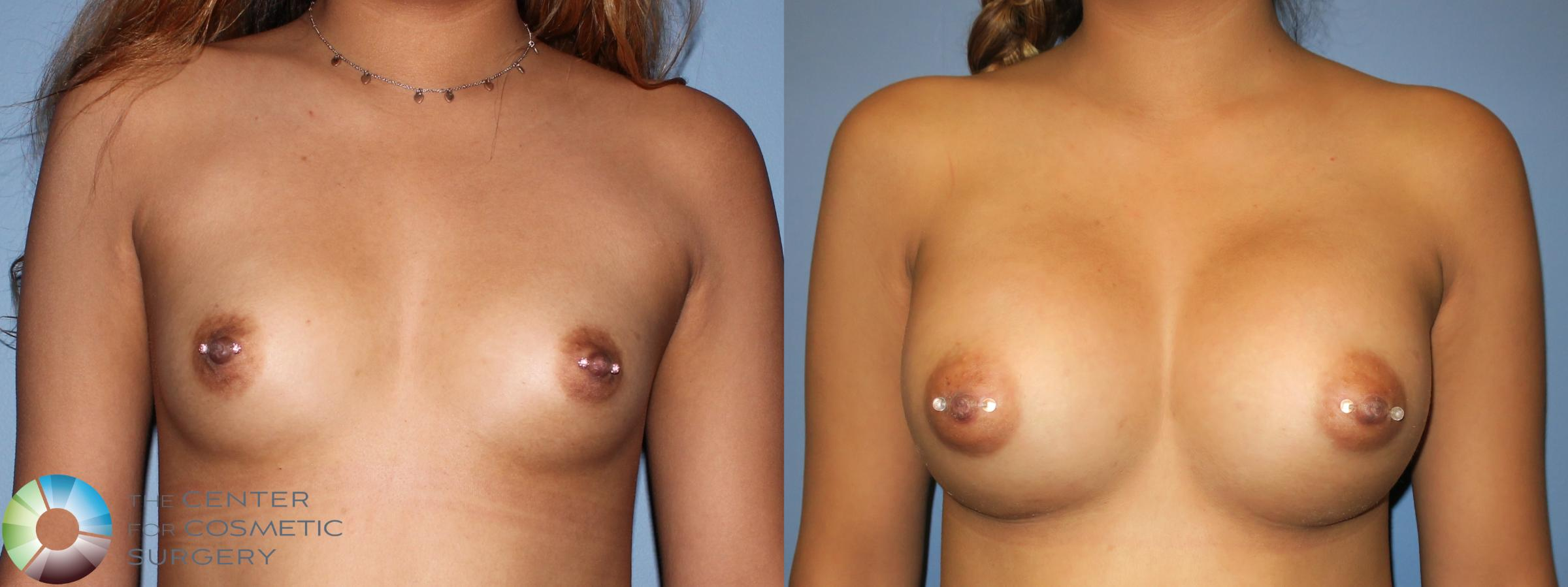 Breast Augmentation Case 809 Before & After Front | Golden, CO | The Center for Cosmetic Surgery