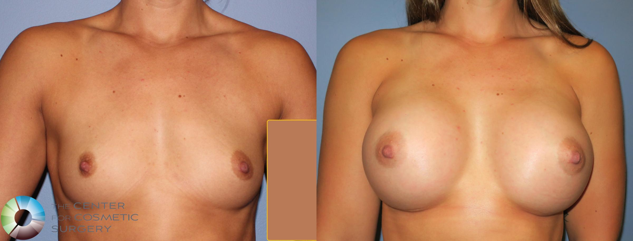Breast Augmentation Case 811 Before & After View #1 | Denver & Golden, CO | The Center for Cosmetic Surgery
