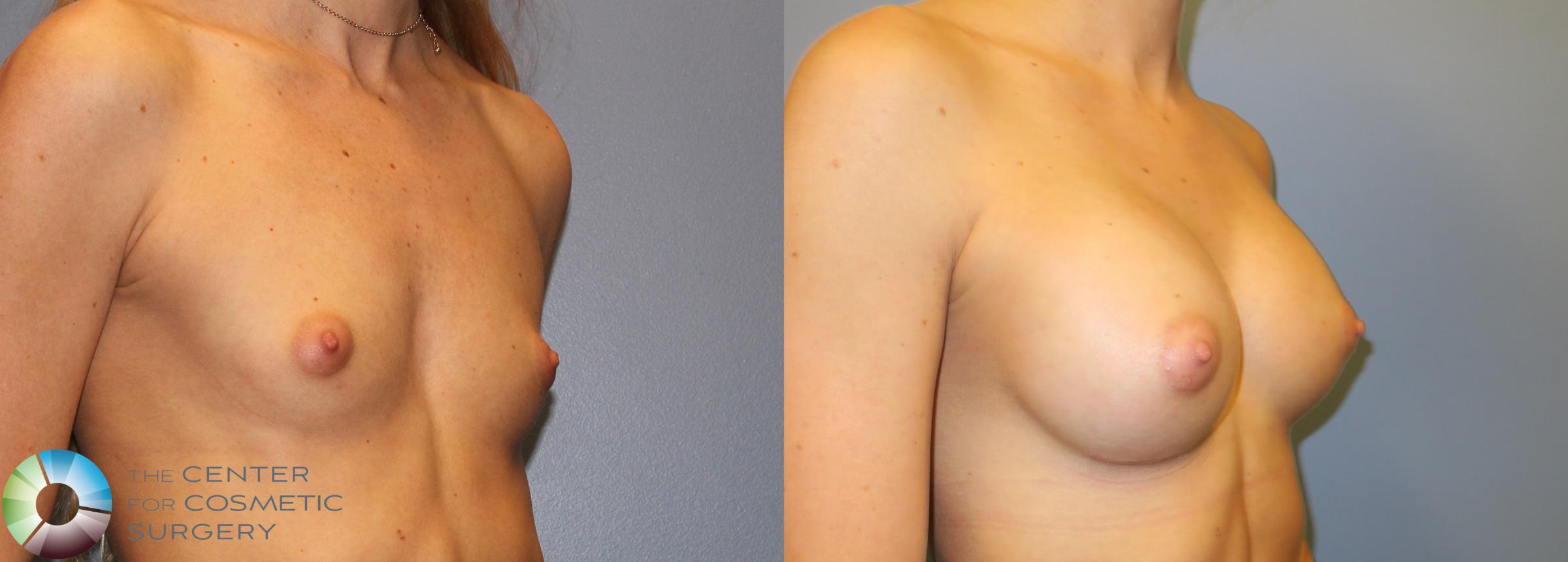 Breast Augmentation Case 828 Before & After View #1 | Golden, CO | The Center for Cosmetic Surgery