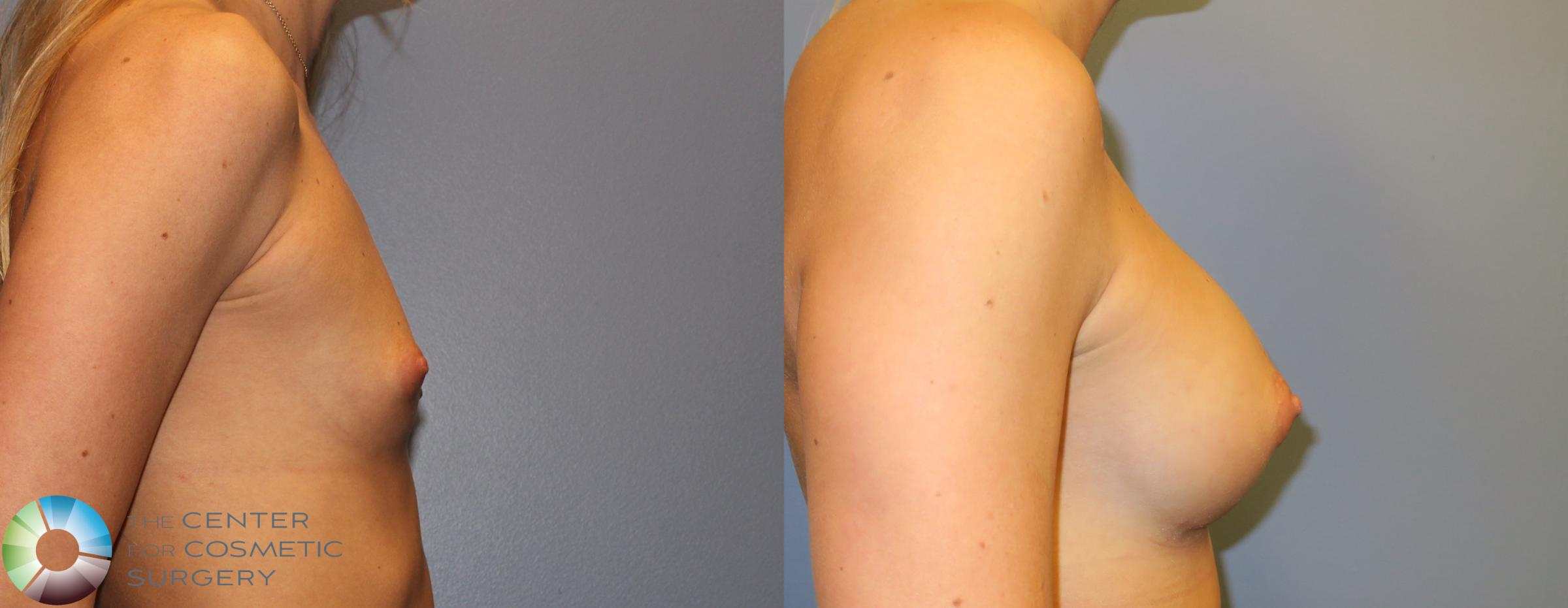 Breast Augmentation Case 828 Before & After View #2 | Golden, CO | The Center for Cosmetic Surgery