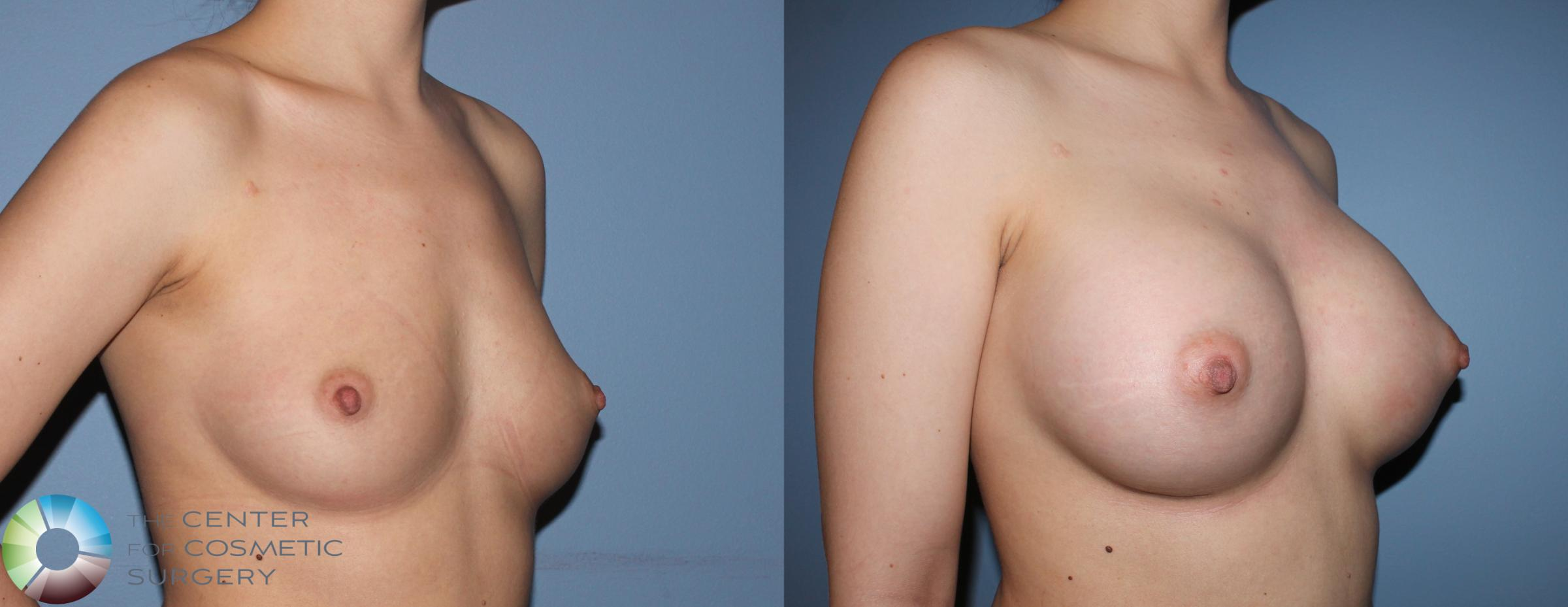 Breast Augmentation Case 837 Before & After View #1 | Golden, CO | The Center for Cosmetic Surgery