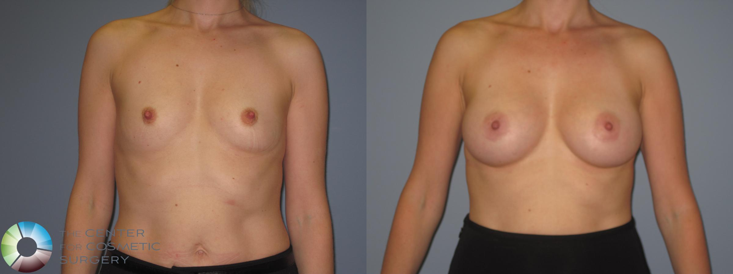 Breast Augmentation Case 848 Before & After View #1 | Golden, CO | The Center for Cosmetic Surgery