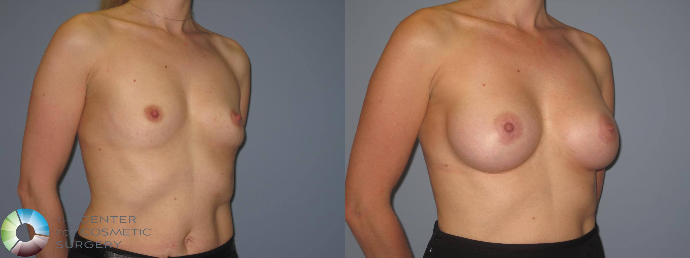 Breast Augmentation Case 848 Before & After View #2 | Golden, CO | The Center for Cosmetic Surgery