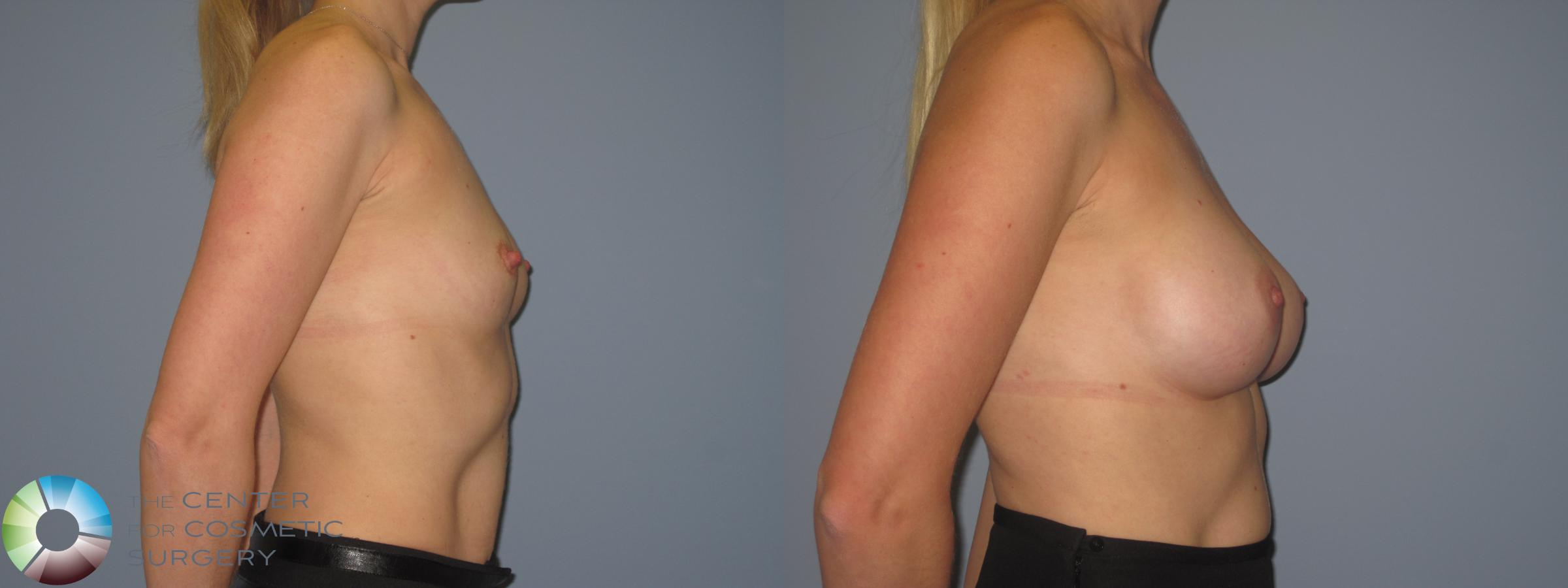 Breast Augmentation Case 848 Before & After View #3 | Golden, CO | The Center for Cosmetic Surgery