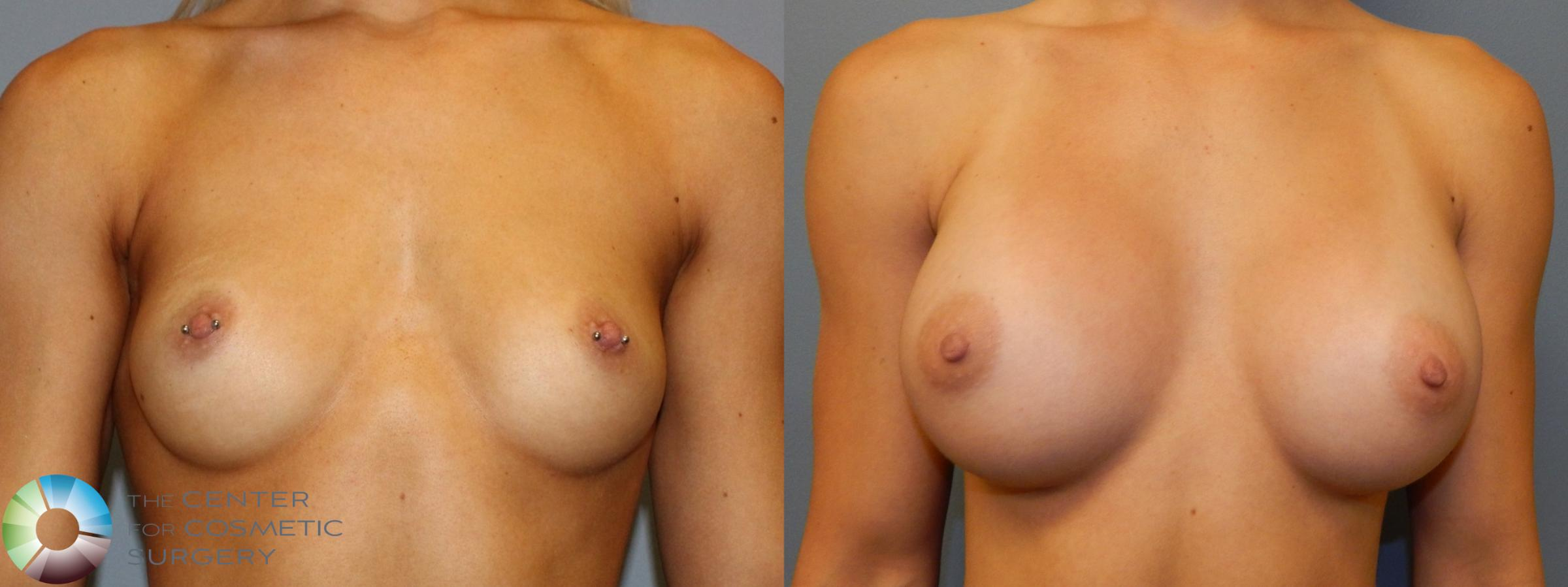 Breast Augmentation Case 860 Before & After View #1 | Golden, CO | The Center for Cosmetic Surgery