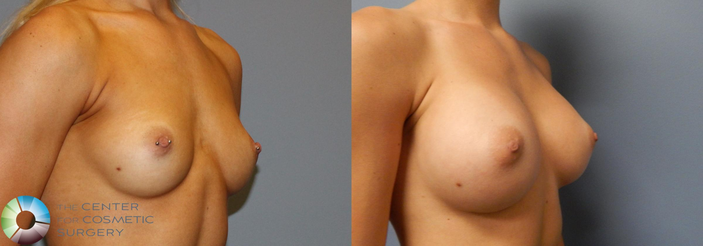 Breast Augmentation Case 860 Before & After View #2 | Golden, CO | The Center for Cosmetic Surgery
