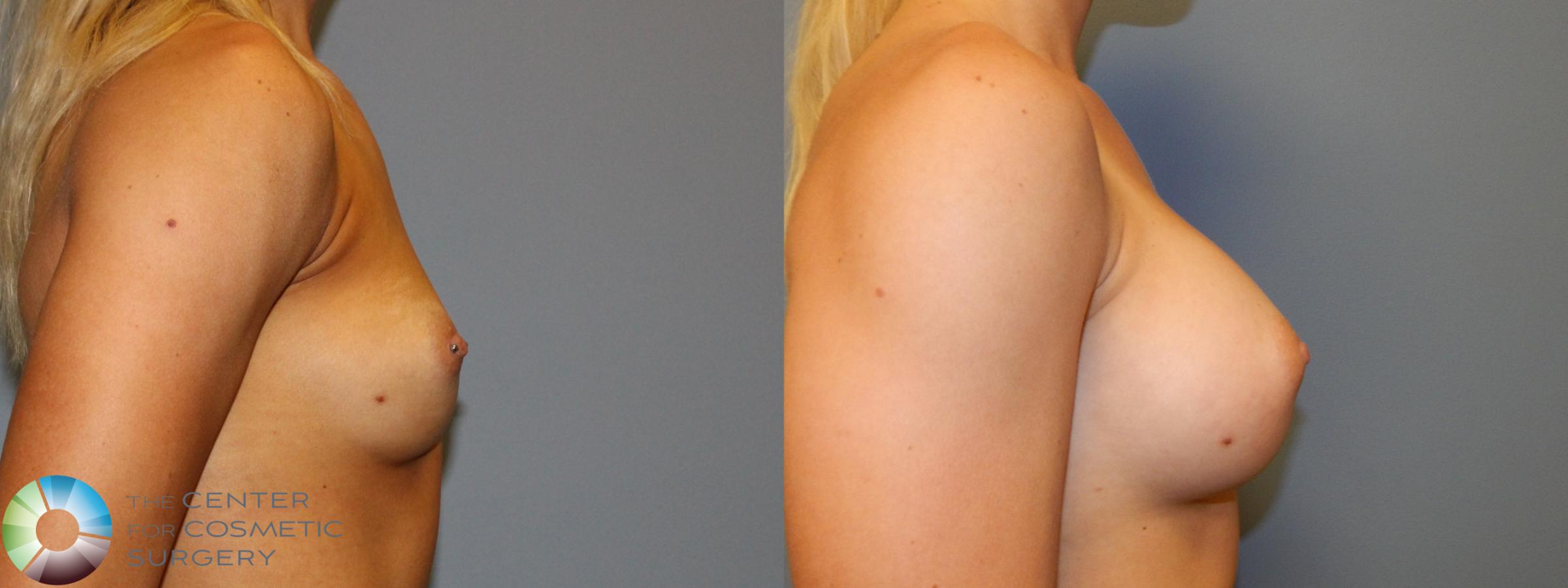 Breast Augmentation Case 860 Before & After View #3 | Golden, CO | The Center for Cosmetic Surgery