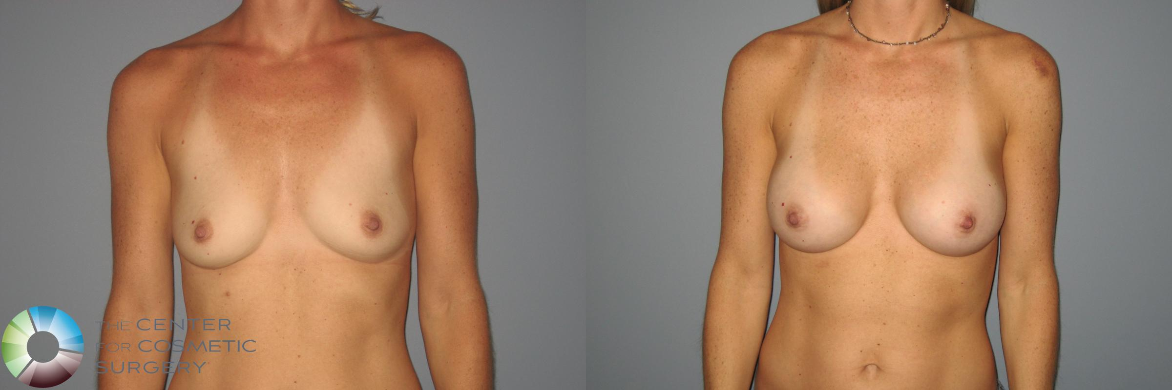 Breast Augmentation Case 871 Before & After View #1 | Golden, CO | The Center for Cosmetic Surgery