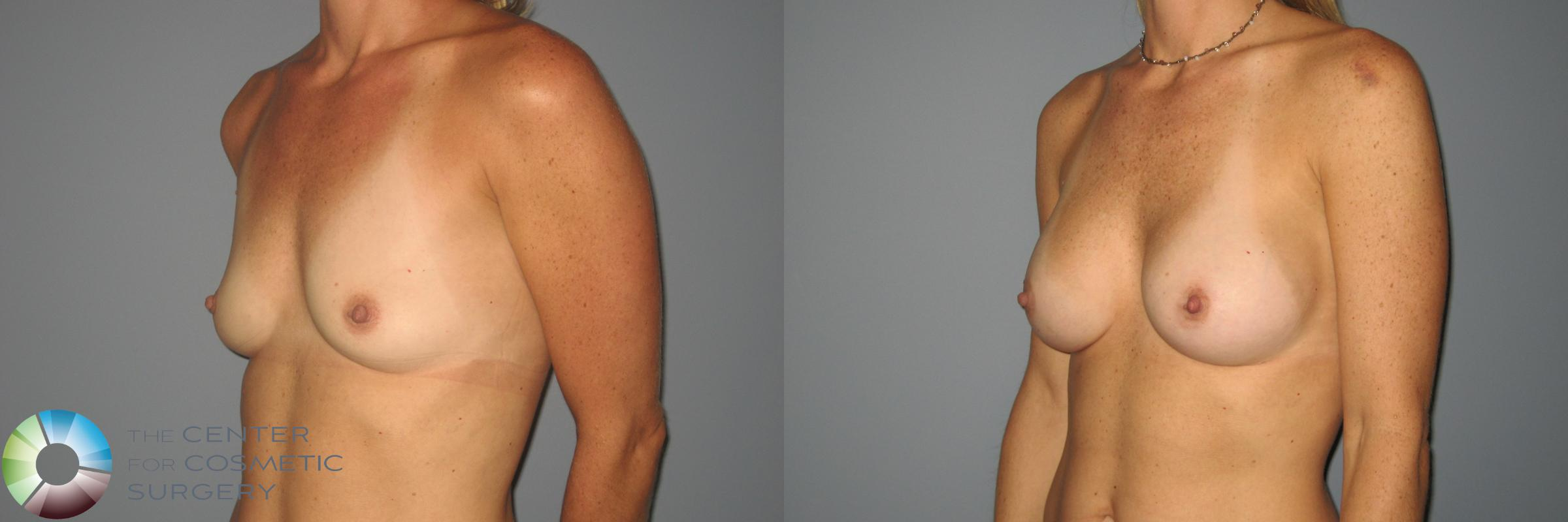 Breast Augmentation Case 871 Before & After View #2 | Golden, CO | The Center for Cosmetic Surgery