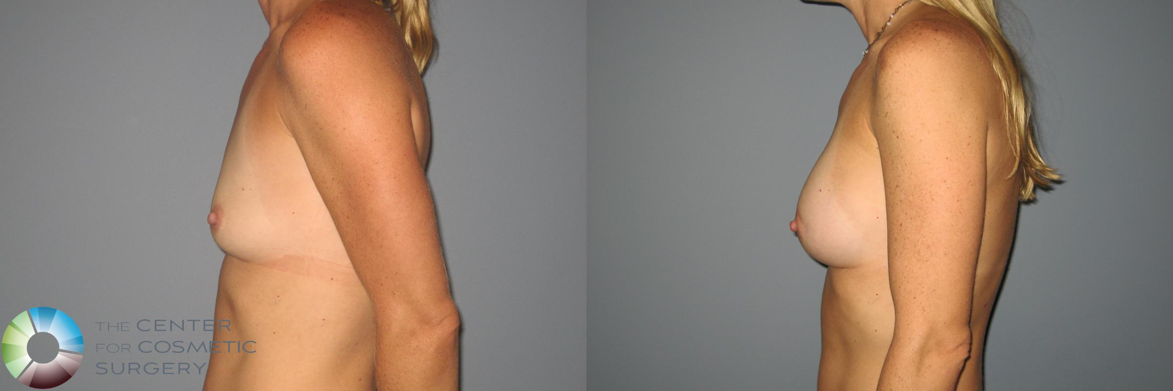 Breast Augmentation Case 871 Before & After View #3 | Golden, CO | The Center for Cosmetic Surgery