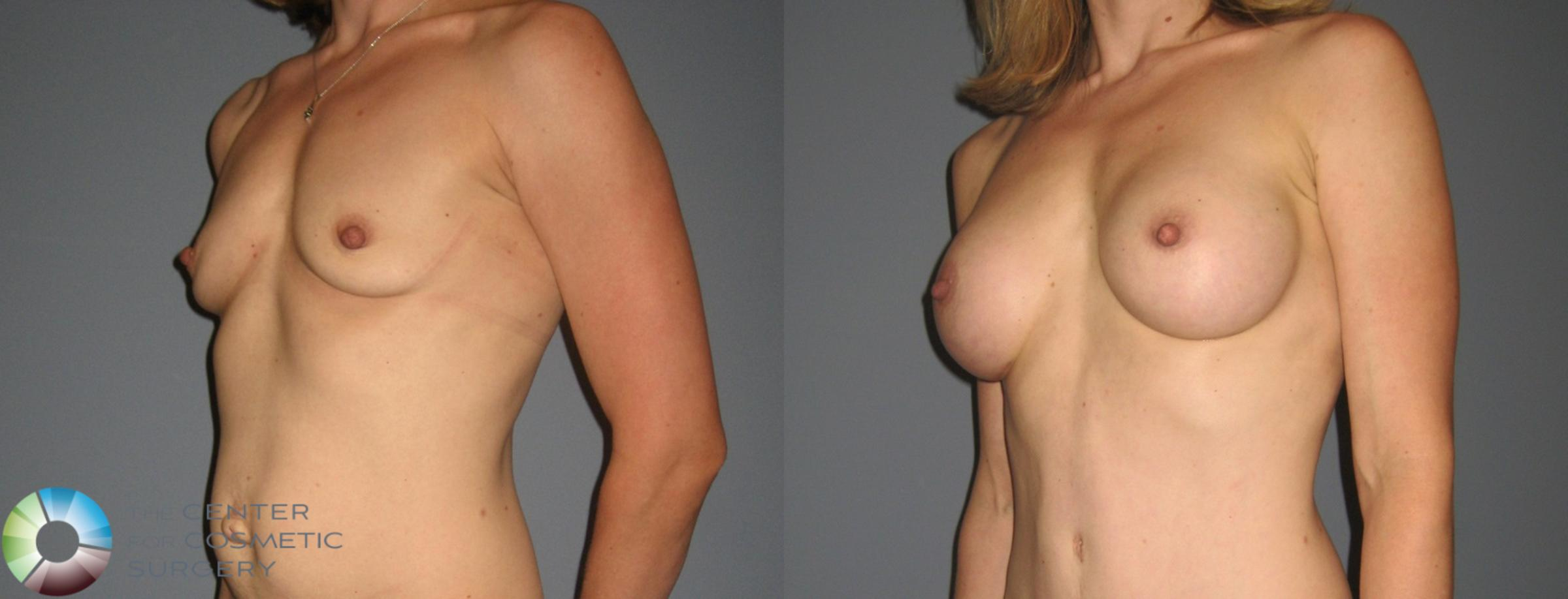 Breast Augmentation Case 878 Before & After View #1 | Golden, CO | The Center for Cosmetic Surgery