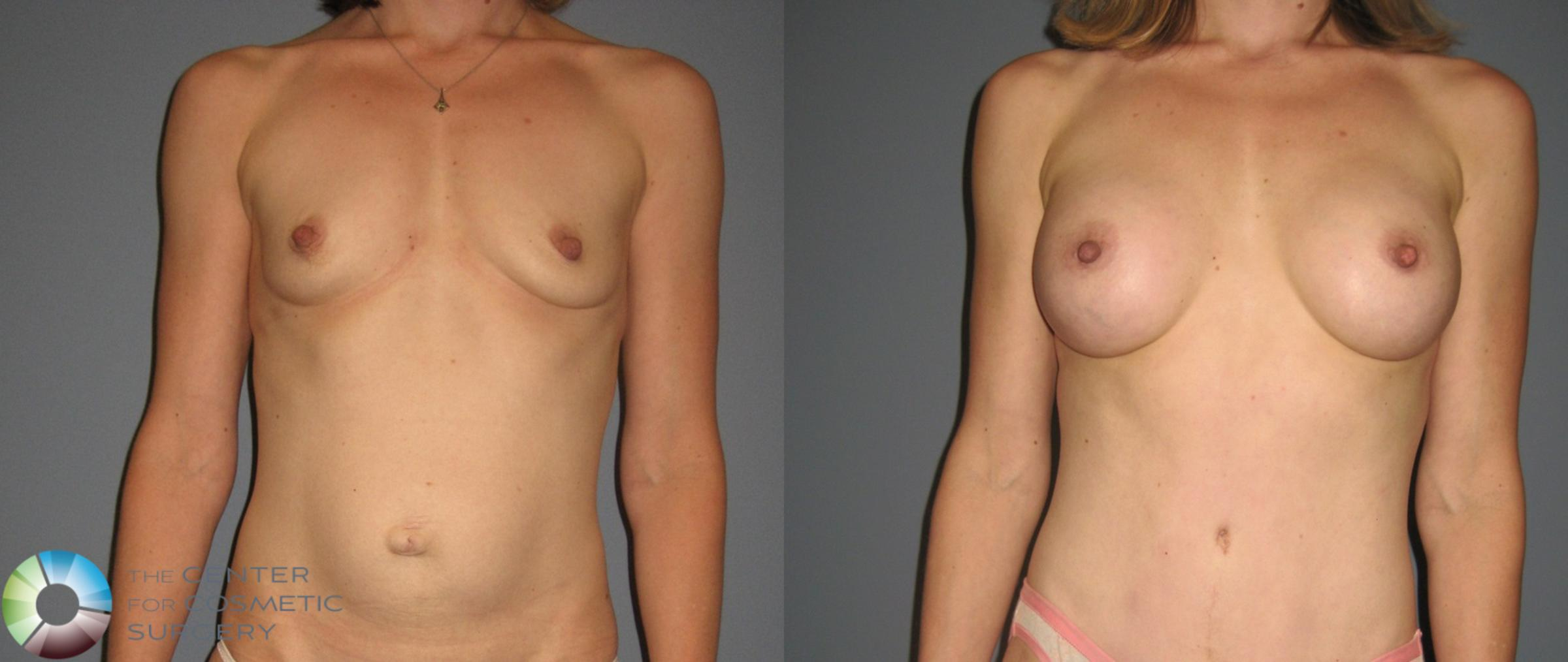 Breast Augmentation Case 878 Before & After View #2 | Golden, CO | The Center for Cosmetic Surgery