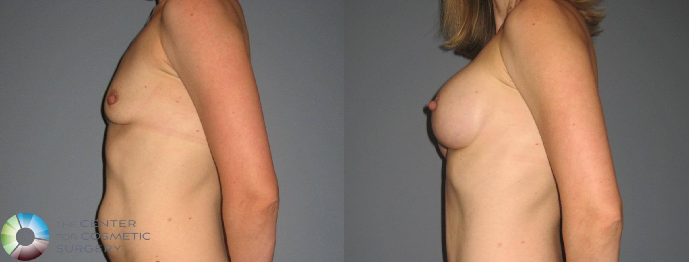 Breast Augmentation Case 878 Before & After View #3 | Golden, CO | The Center for Cosmetic Surgery