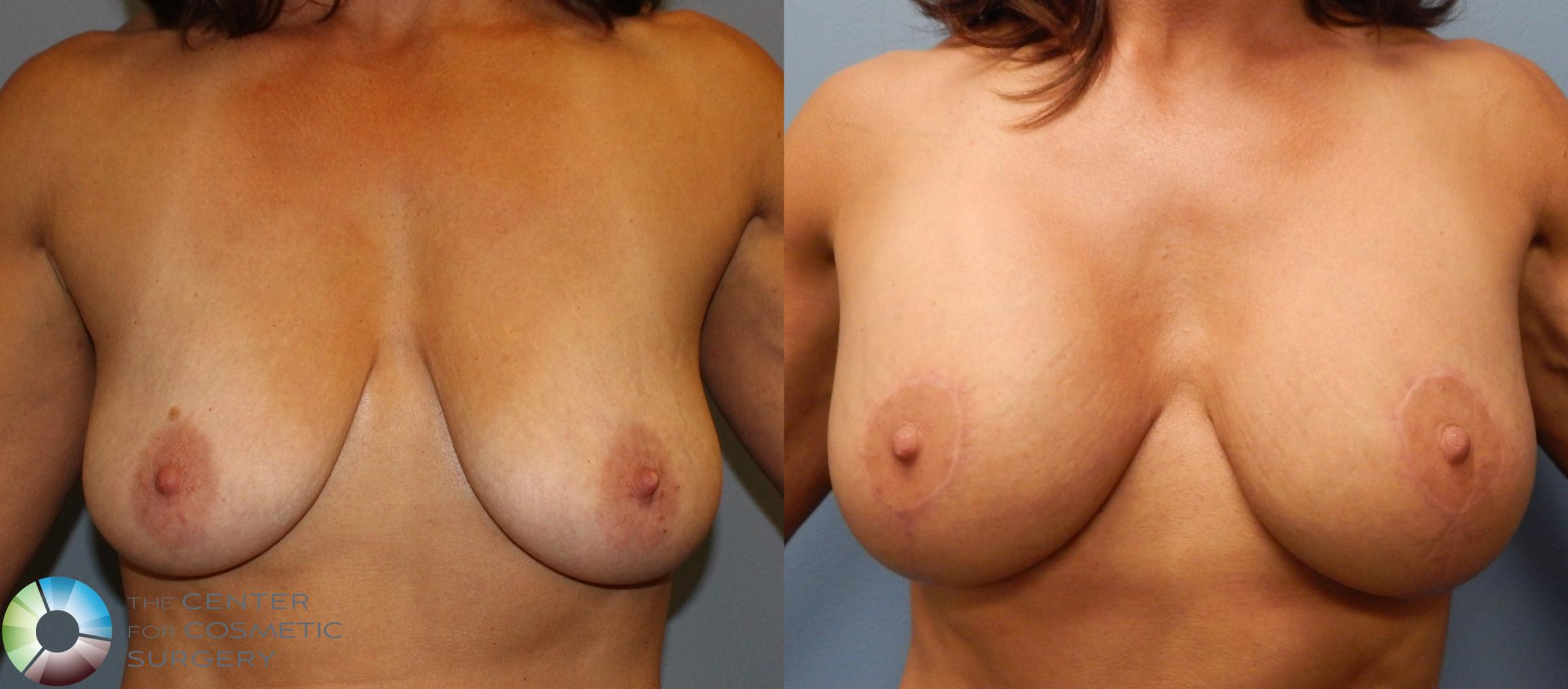 Breast Augmentation Case 892 Before & After View #1 | Golden, CO | The Center for Cosmetic Surgery