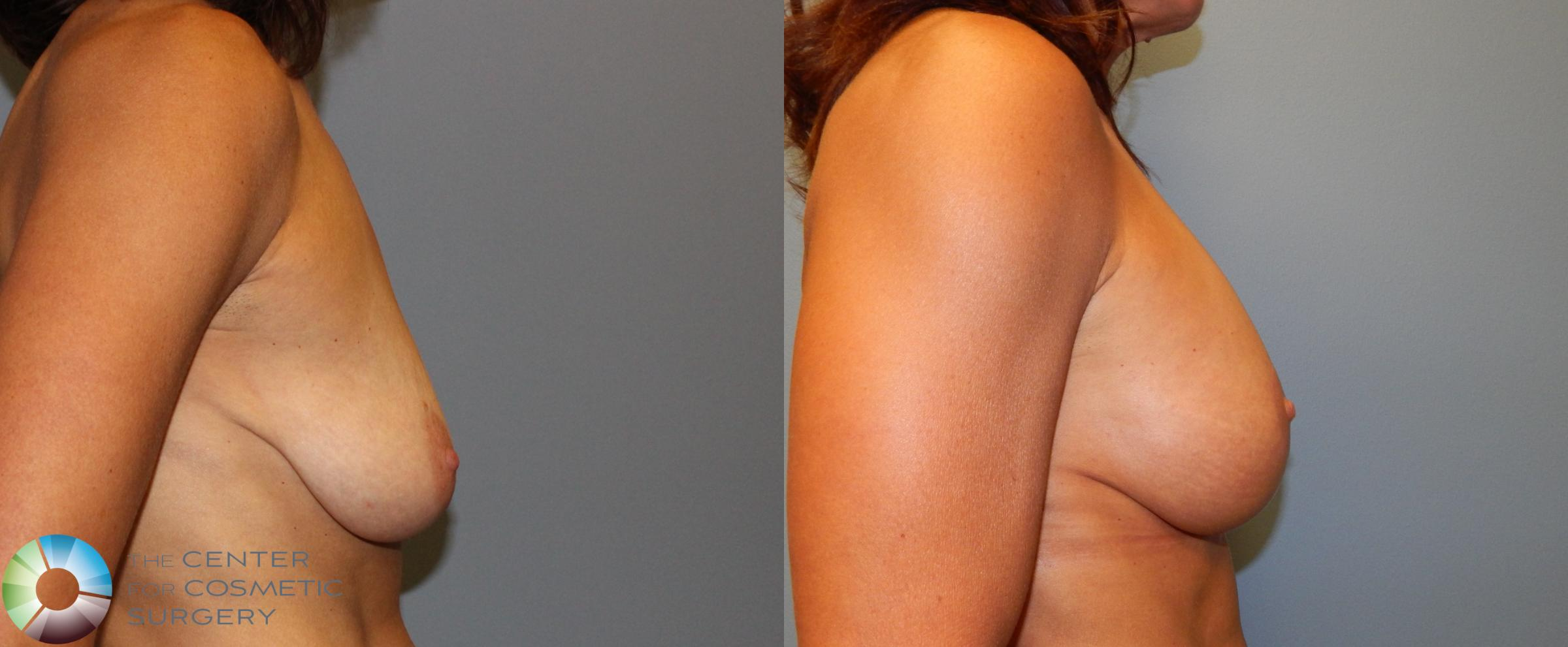 Breast Augmentation Case 892 Before & After View #3 | Golden, CO | The Center for Cosmetic Surgery