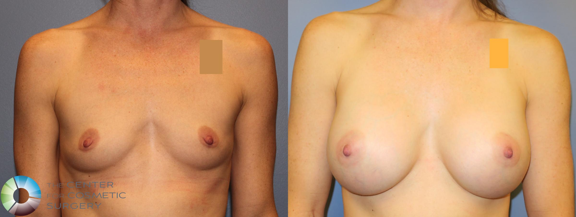 Breast Augmentation Case 909 Before & After View #1 | Golden, CO | The Center for Cosmetic Surgery