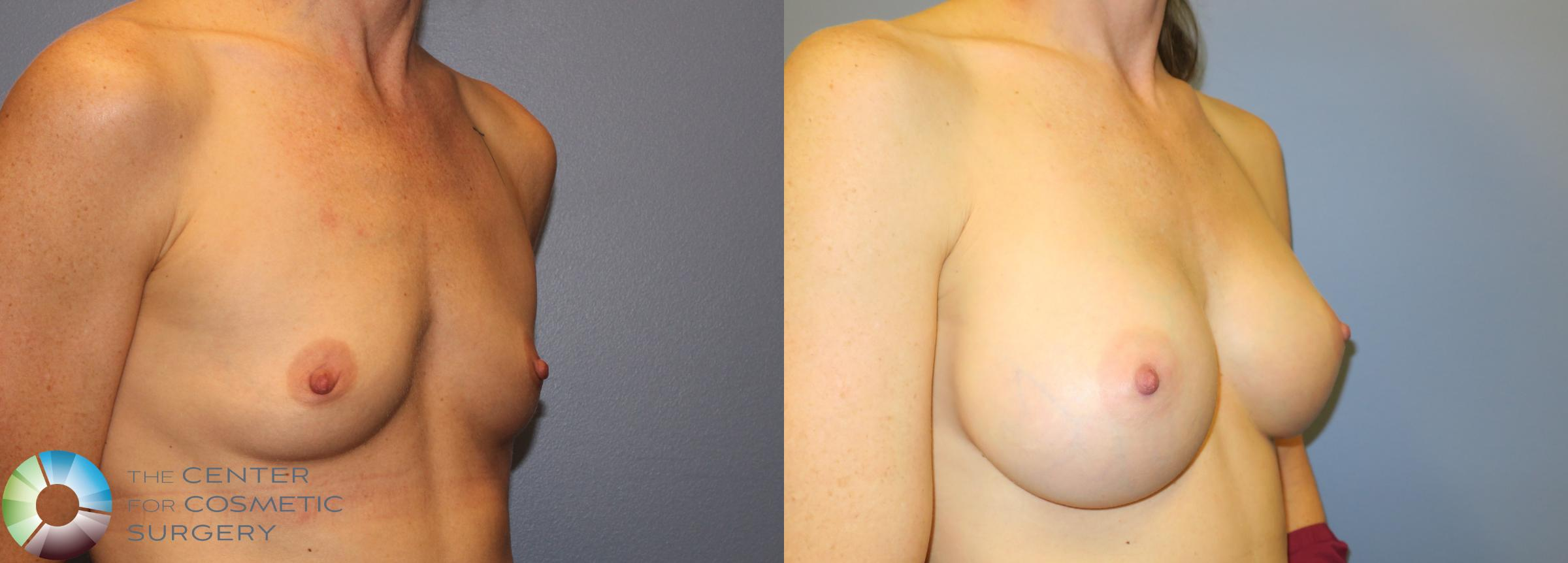 Breast Augmentation Case 909 Before & After View #2 | Golden, CO | The Center for Cosmetic Surgery
