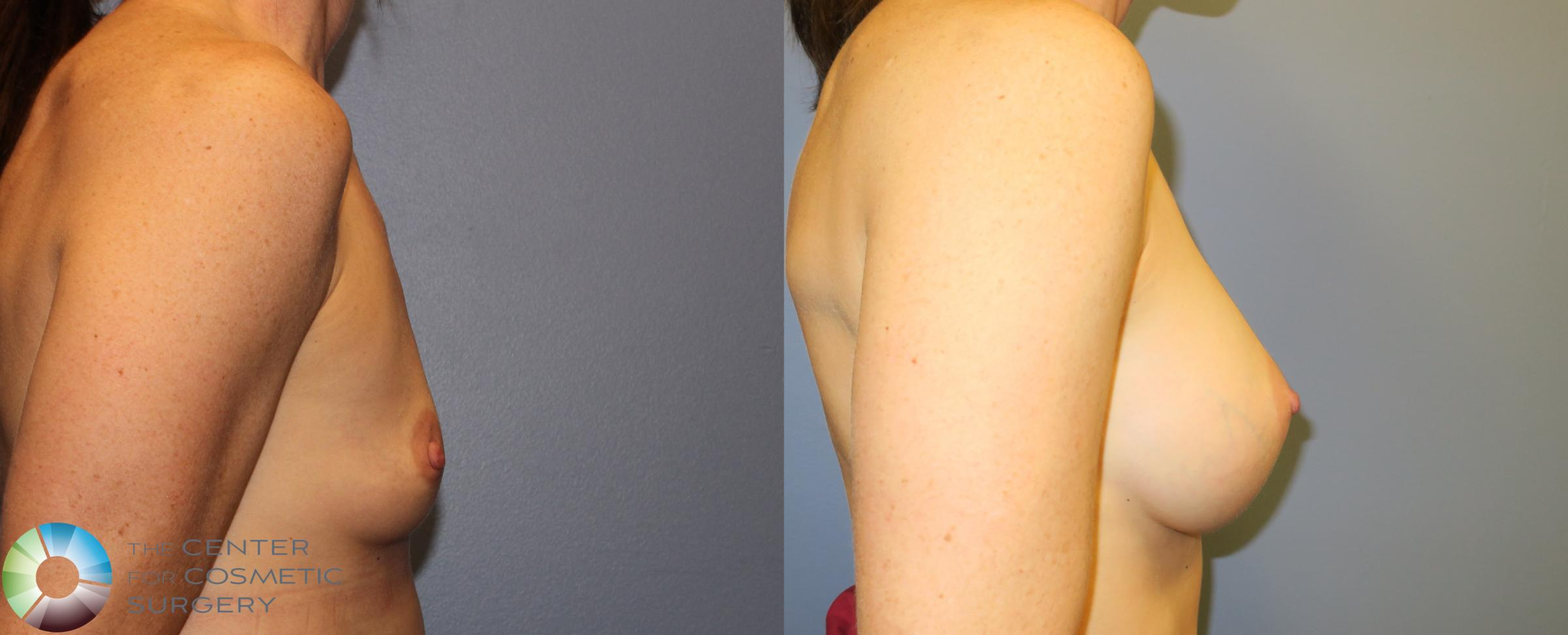 Breast Augmentation Case 909 Before & After View #3 | Golden, CO | The Center for Cosmetic Surgery