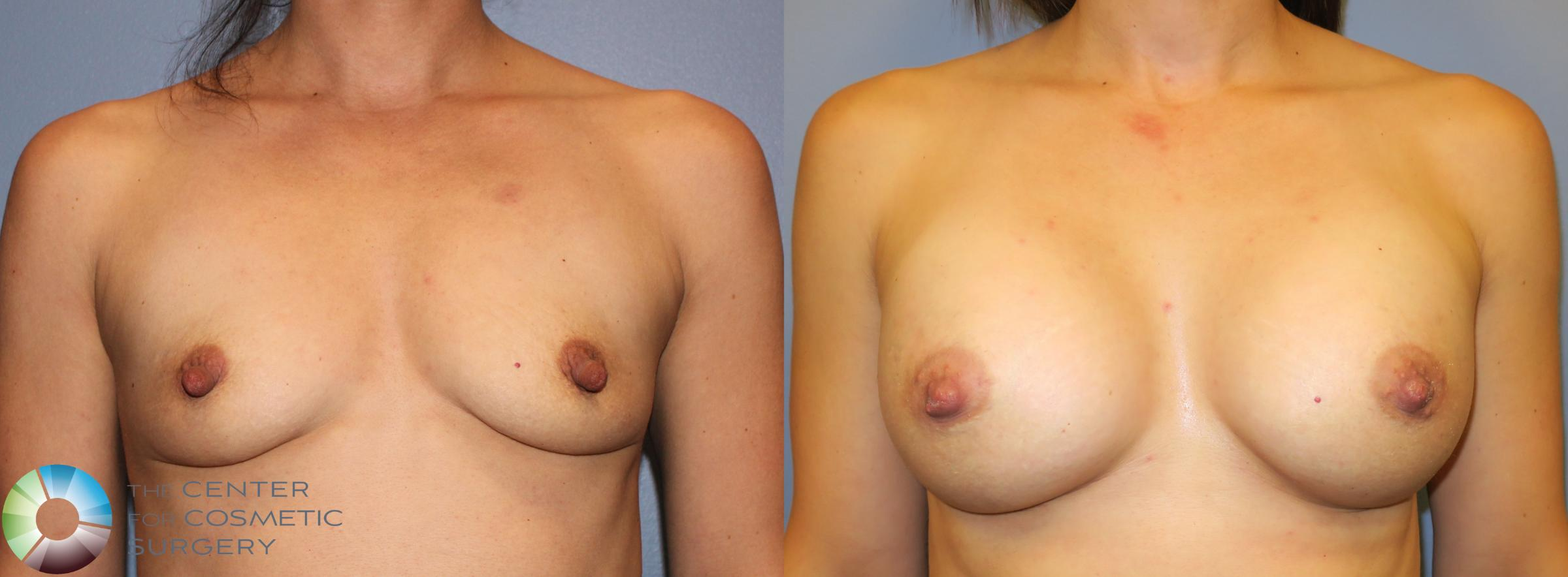 Nipple Repair Case 911 Before & After View #1 | Golden, CO | The Center for Cosmetic Surgery