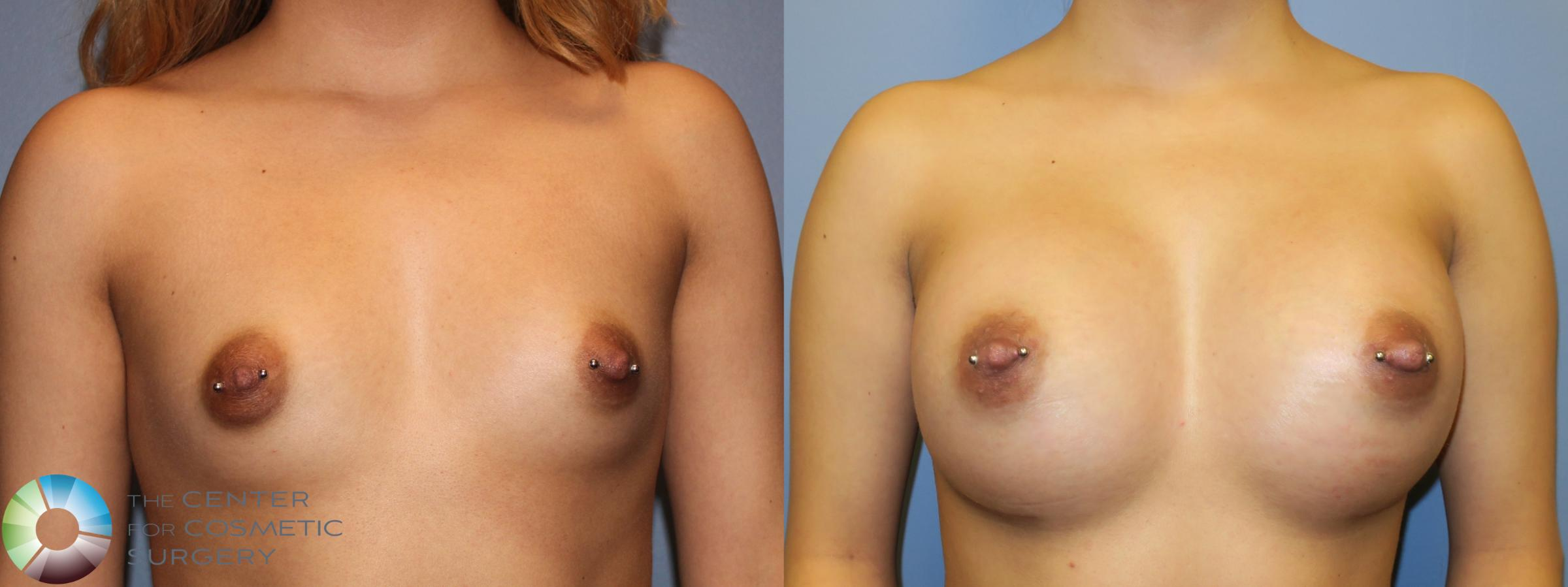 Breast Augmentation Case 965 Before & After View #1 | Golden, CO | The Center for Cosmetic Surgery