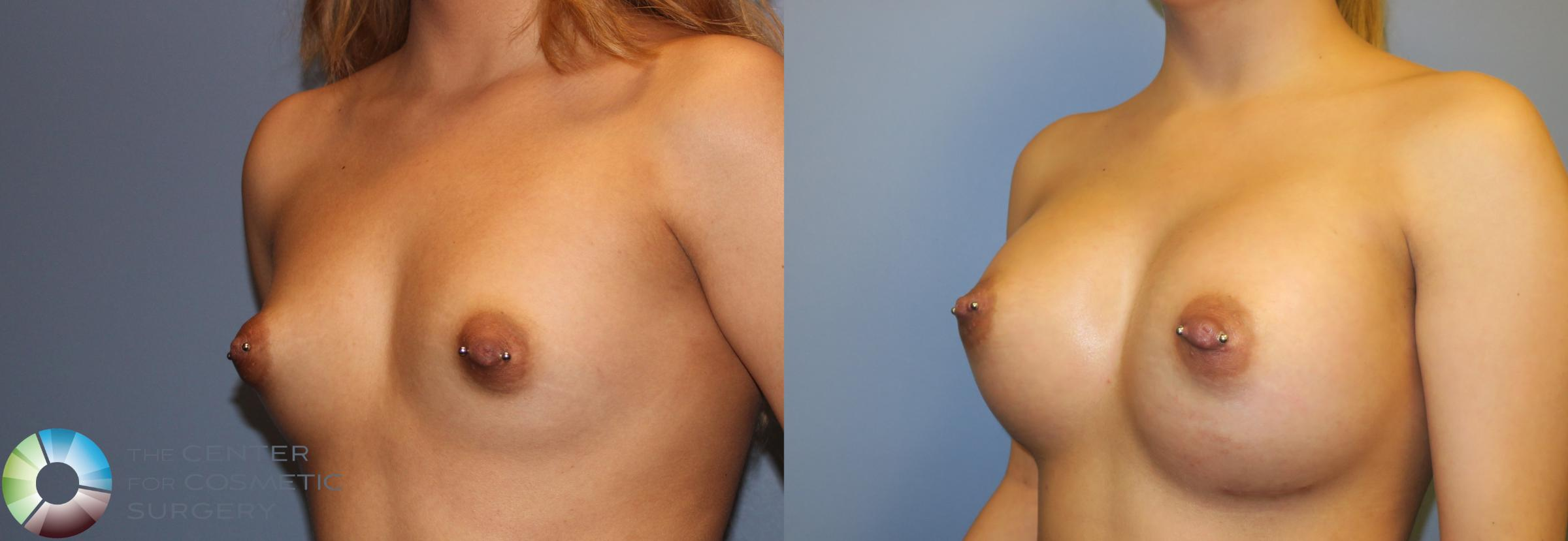 Breast Augmentation Case 965 Before & After View #2 | Golden, CO | The Center for Cosmetic Surgery
