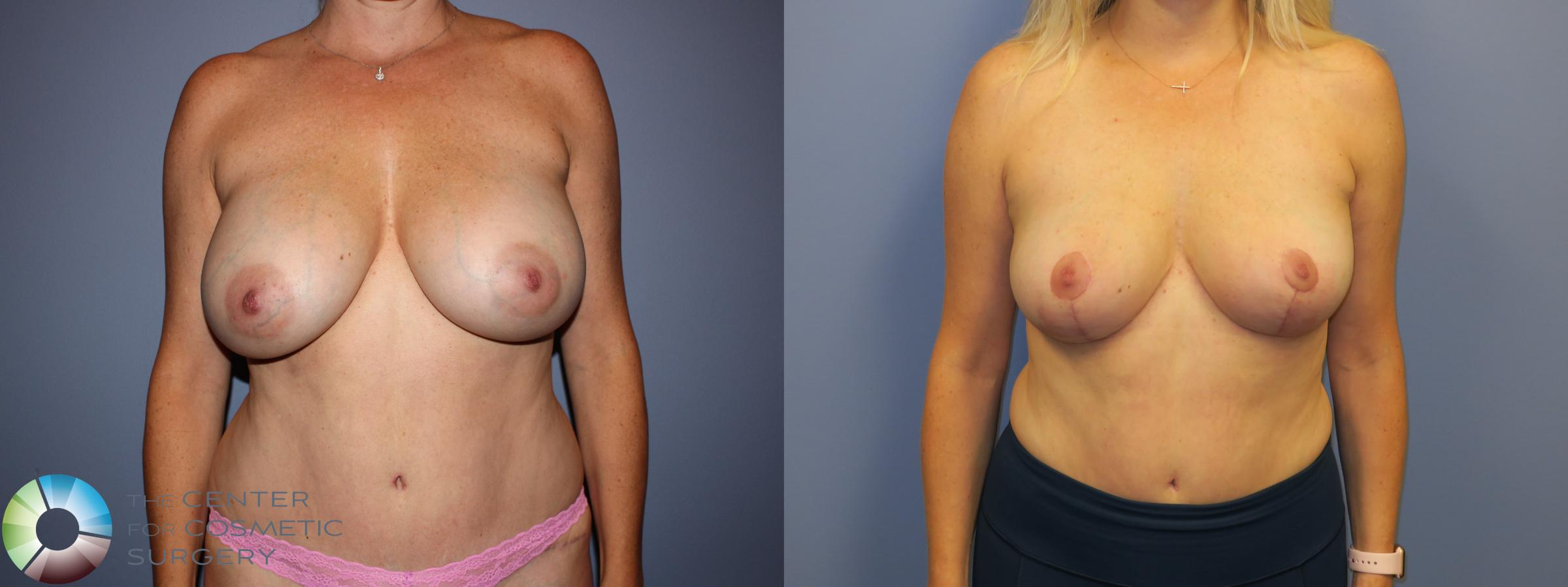 Breast Lift Case 11214 Before & After Front | Golden, CO | The Center for Cosmetic Surgery