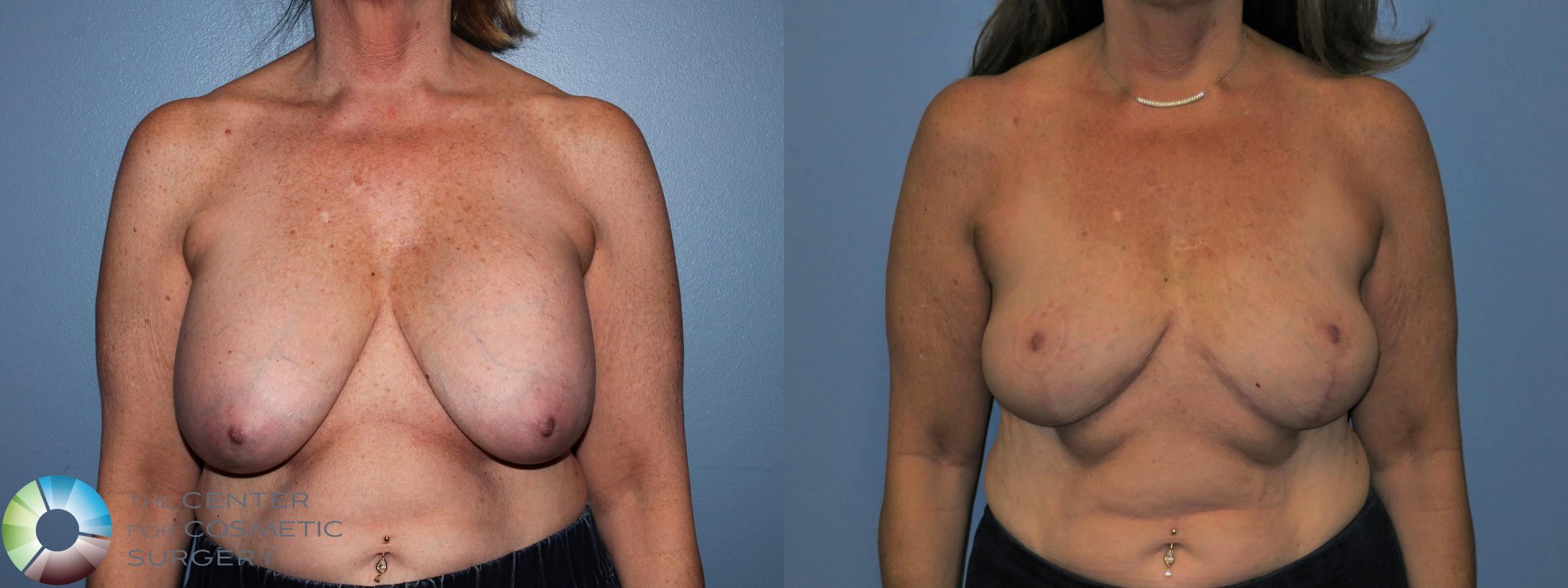 Breast Implant Removal with Capsulectomy and Breast Lift