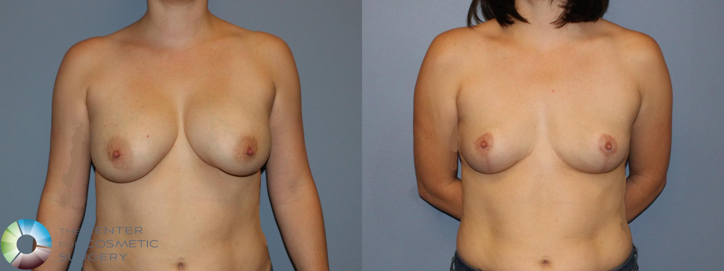 Breast Implant Removal (Explant) Case 11222 Before & After Front | Golden, CO | The Center for Cosmetic Surgery