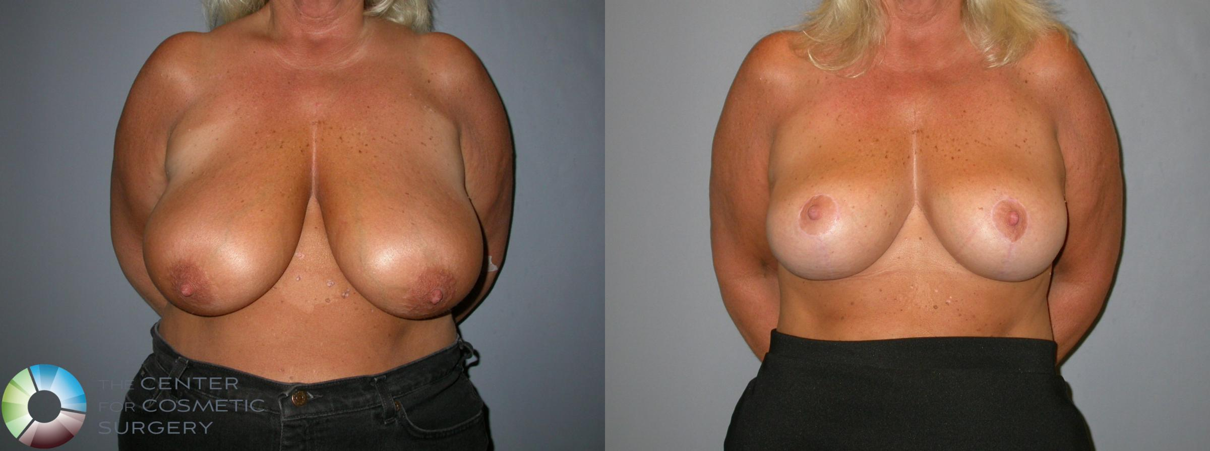 Breast Lift Case 107 Before & After View #1 | Golden, CO | The Center for Cosmetic Surgery