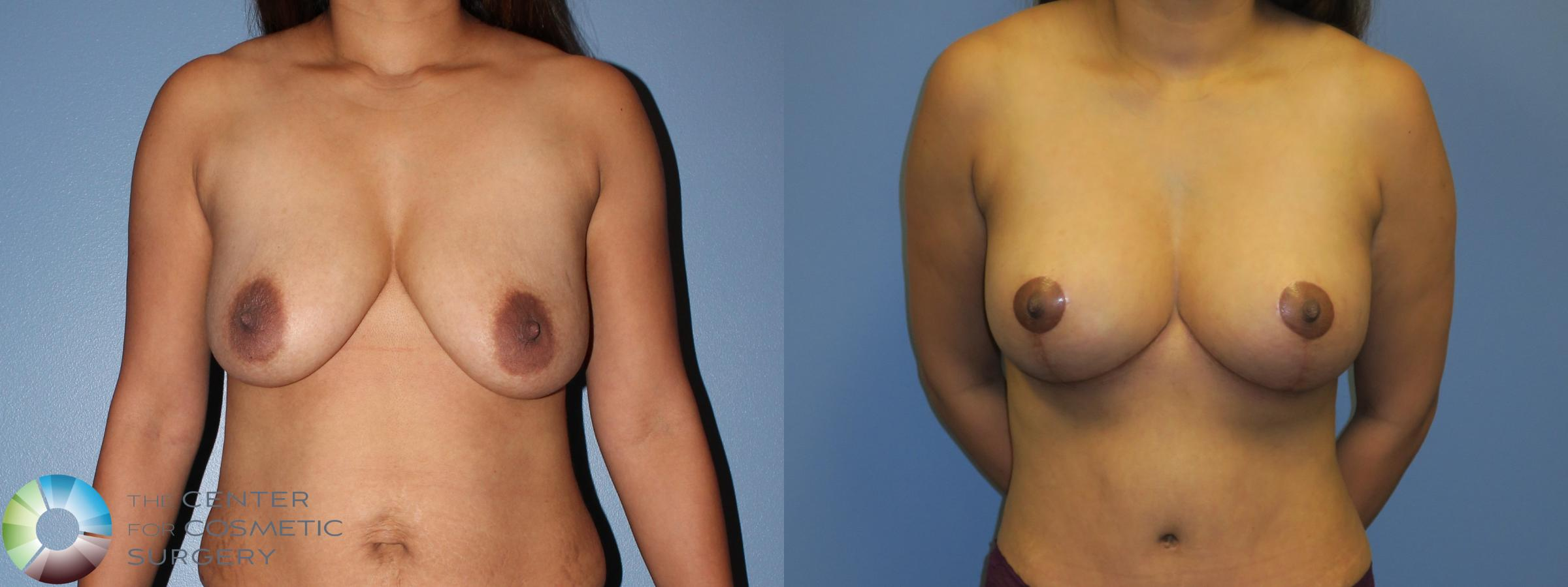Breast Lift without Implants Case 11378 Before & After Front | Golden, CO | The Center for Cosmetic Surgery