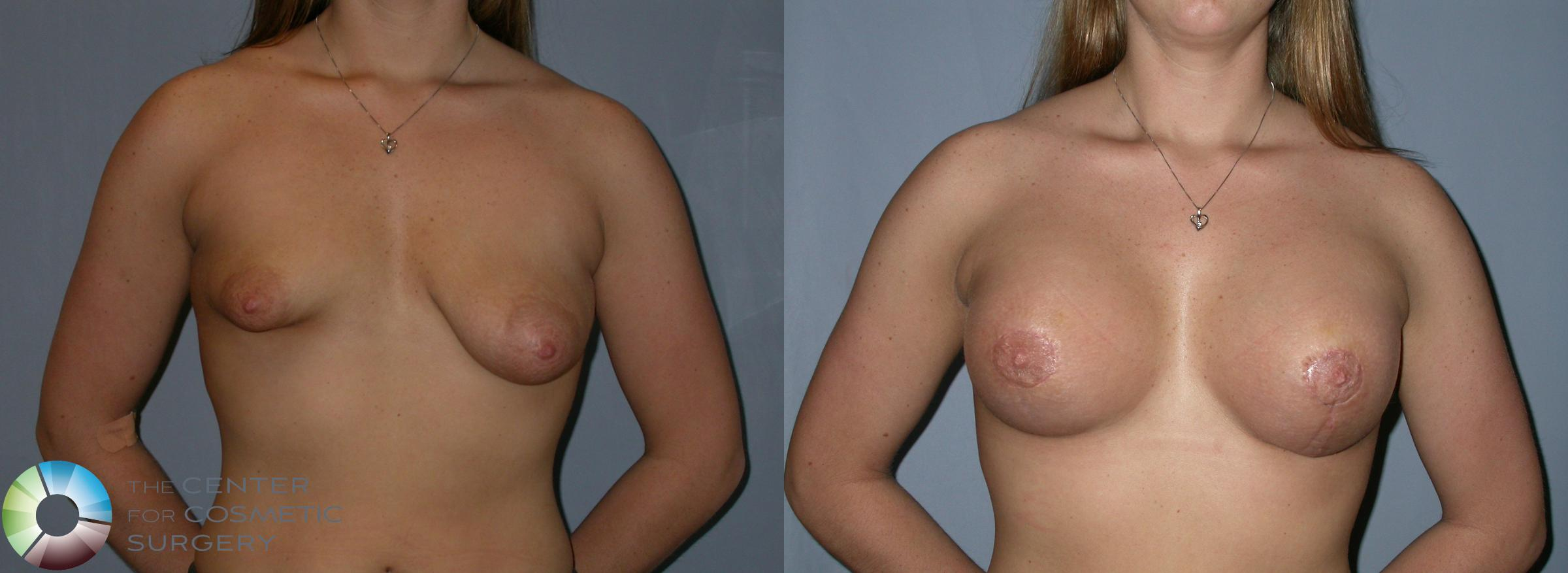 Breast Lift Case 181 Before & After View #1 | Golden, CO | The Center for Cosmetic Surgery