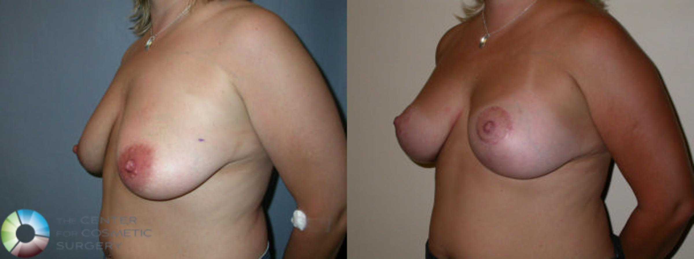 Breast Lift Case 23 Before & After View #1 | Golden, CO | The Center for Cosmetic Surgery