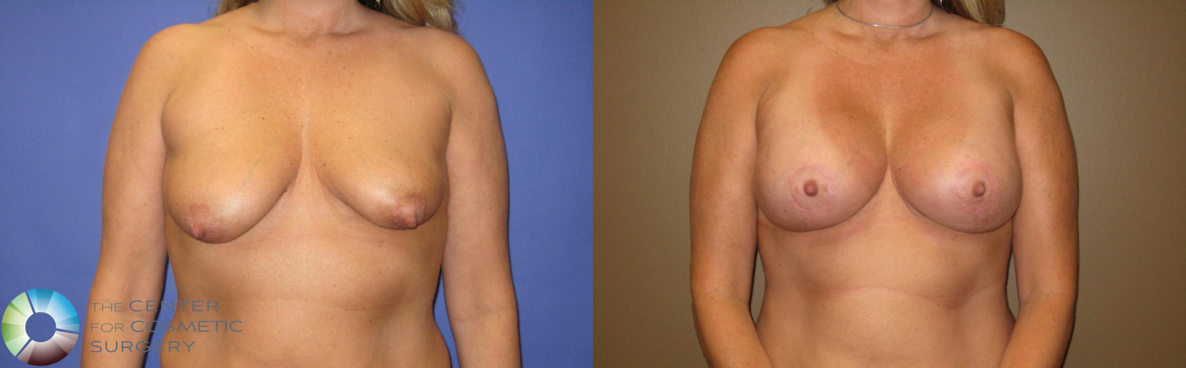 Breast Lift Case 375 Before & After View #1 | Golden, CO | The Center for Cosmetic Surgery