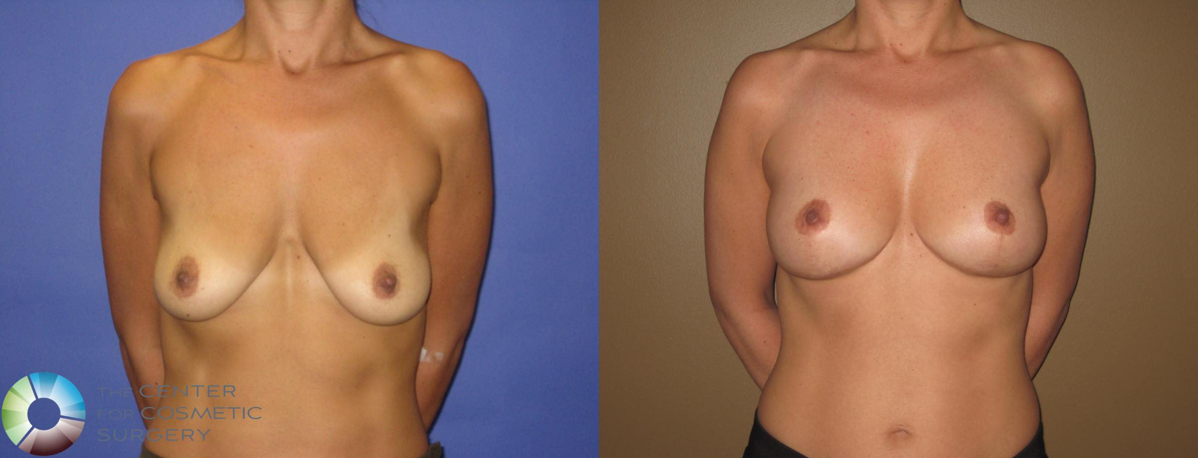 Breast Lift Case 390 Before & After View #1 | Golden, CO | The Center for Cosmetic Surgery