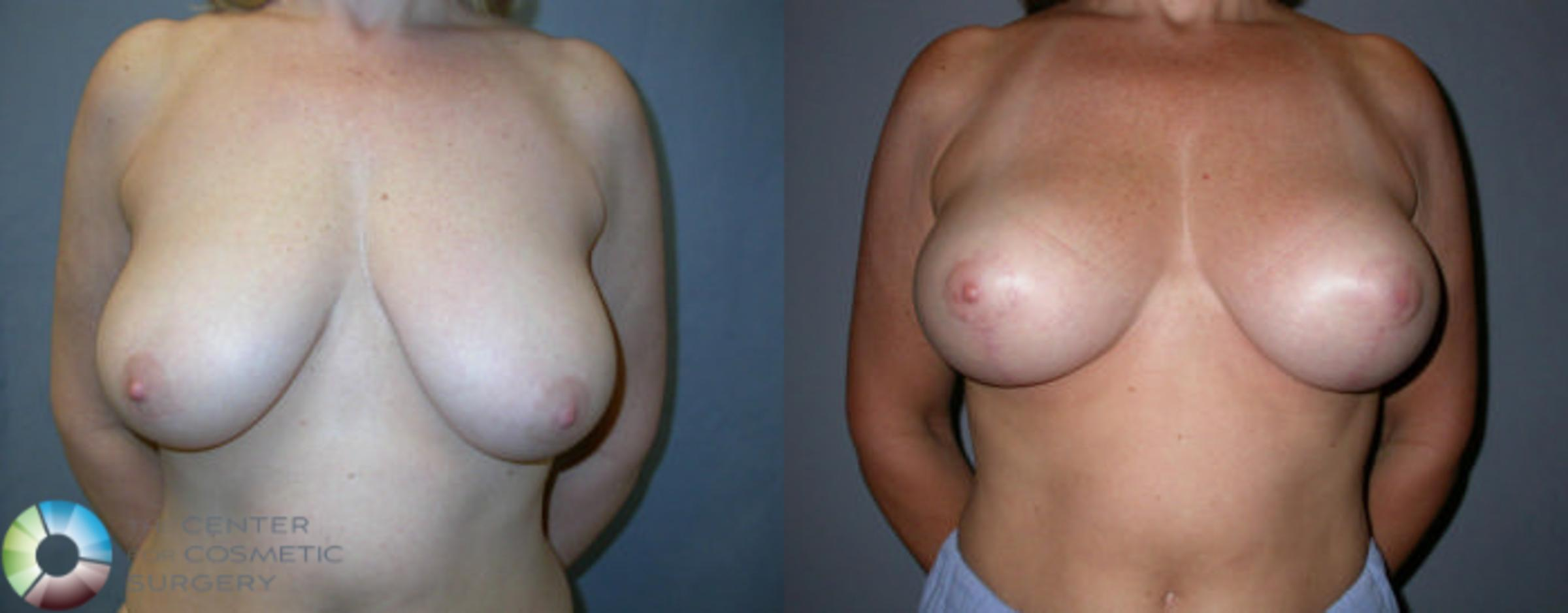 Breast Lift Case 48 Before & After View #1 | Golden, CO | The Center for Cosmetic Surgery