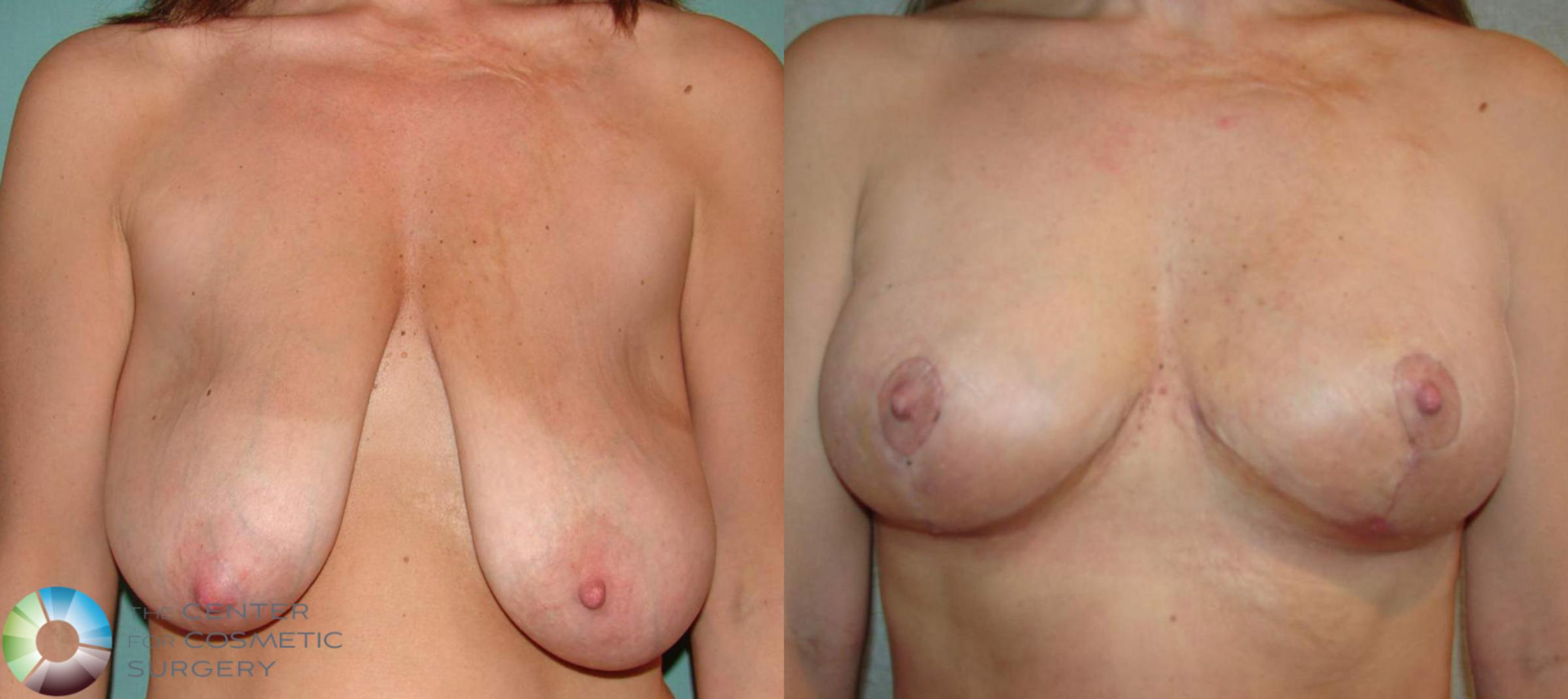 Breast Lift Case 504 Before & After View #1 | Golden, CO | The Center for Cosmetic Surgery